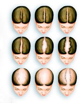 типичная картина выпадения волос у женщин