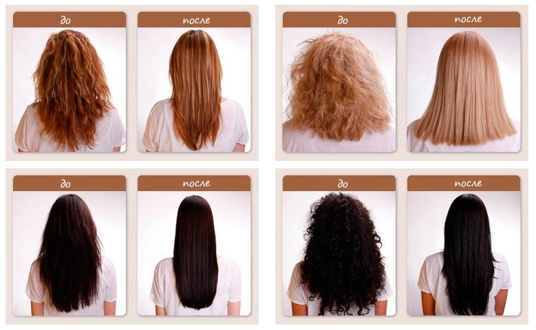 как удалить волосы с ануса