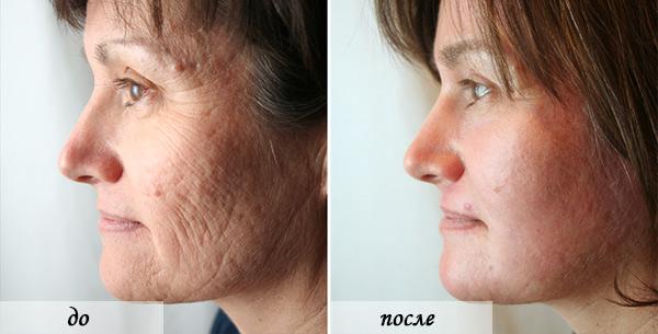 пилинг лица лазером фото до и после