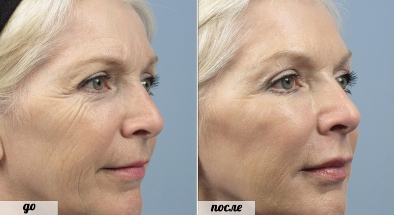 Фото до и после инъекций ксеомин