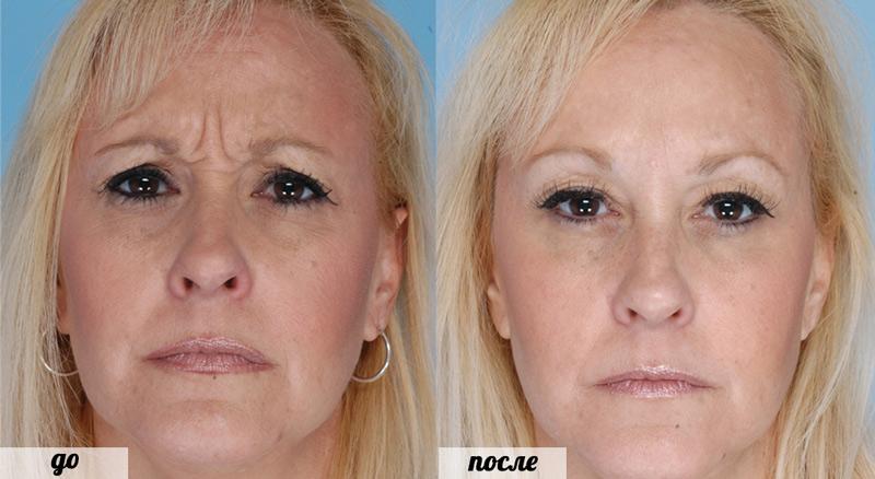 фото лица после инъекций Ксеомин